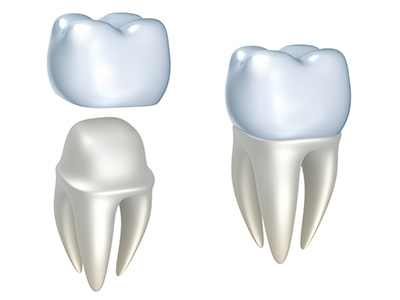Dental Crowns by dentist in Seattle, WA.