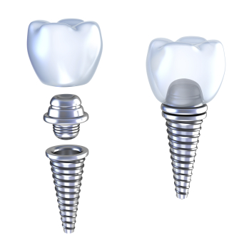 Diagram of dental Implants by dentist in Seattle, WA.