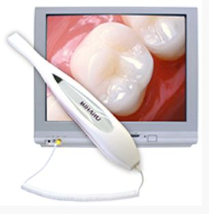Intraoral cameras offered by dentist in Seattle, WA.